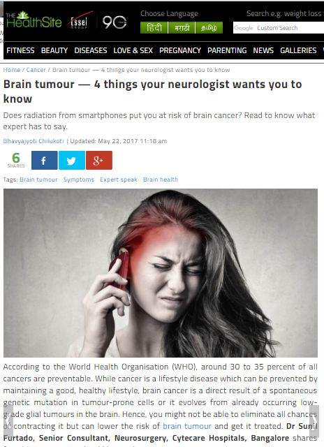 Brain Tumour - 4 Things Your Neurologist Wants You to Know