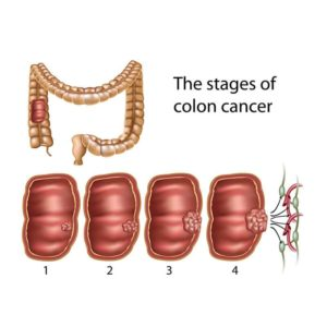 Stages Of Colon Cancer Colon Cancer Treatment In India Cytecare